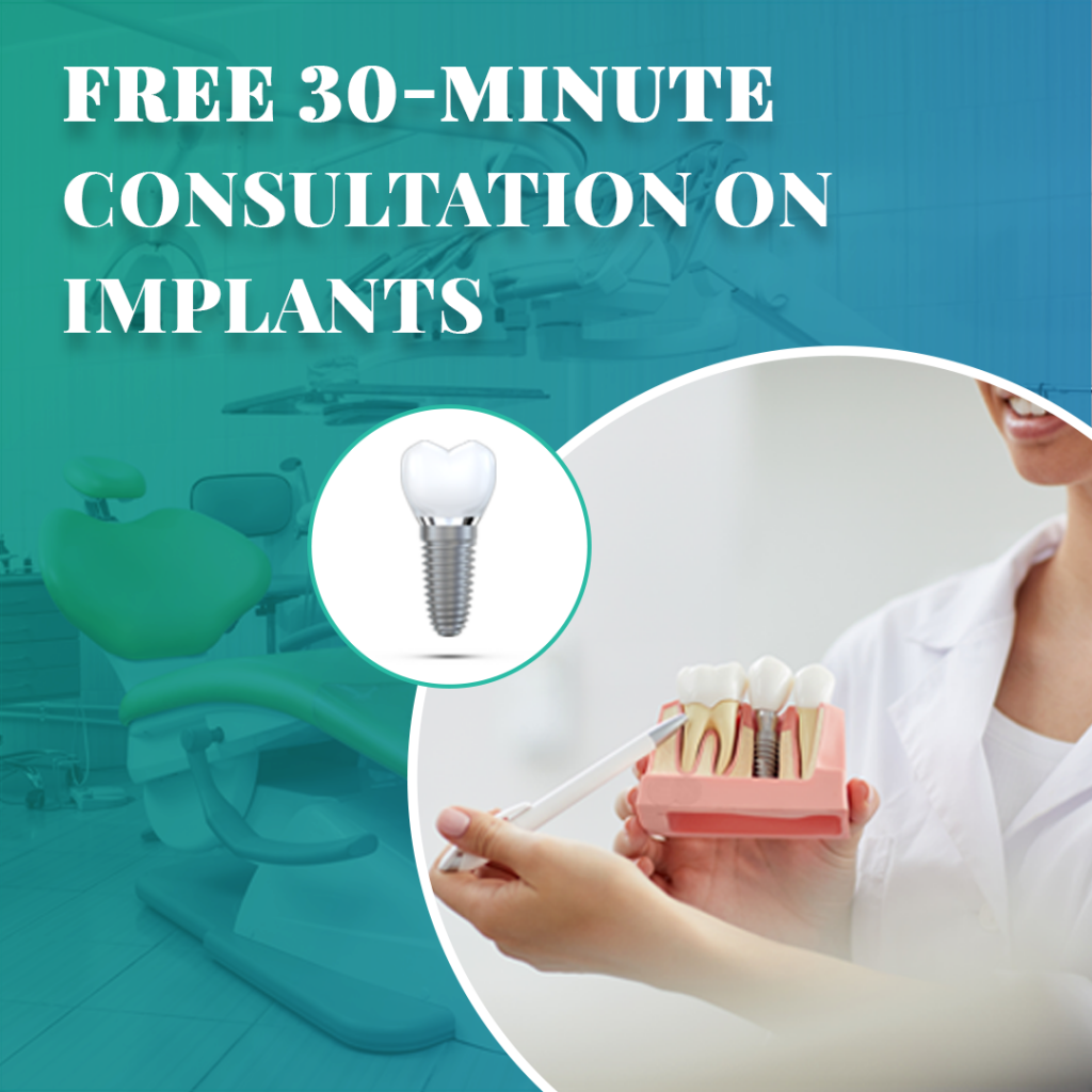 free-30-minute-consultation-on-implant