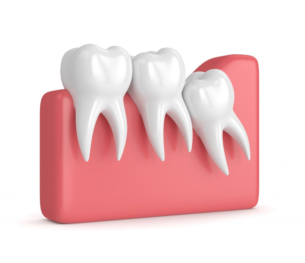wisdom tooth extraction visuals